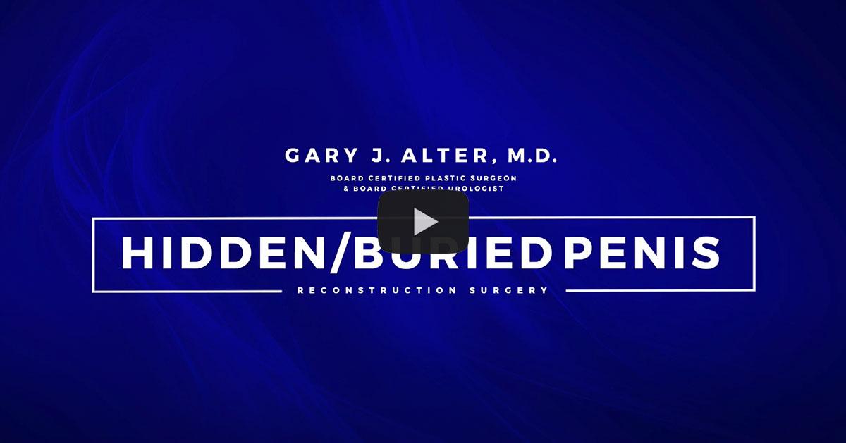 Hidden Penis Video Placeholder