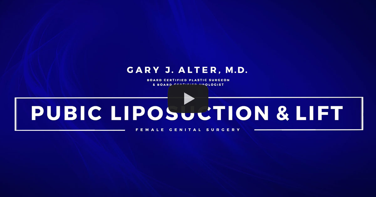 Pubic Liposuction and Lift Video Placeholder